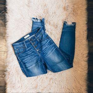 "Madewell 10"" High Riser Skinny Jeans"
